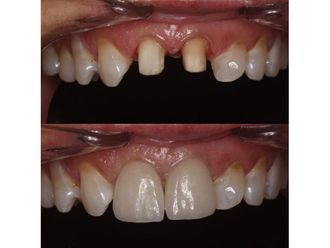 Implantes dentales-685216