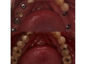 Implantes dentales-685217