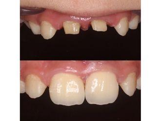 Implantes dentales-685225