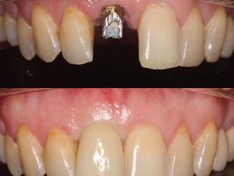 Implantes dentales-788630