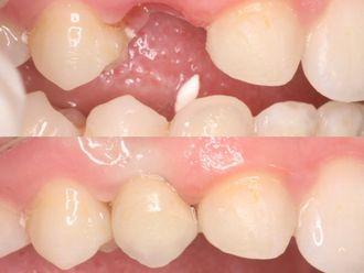 Implantes dentales-788631