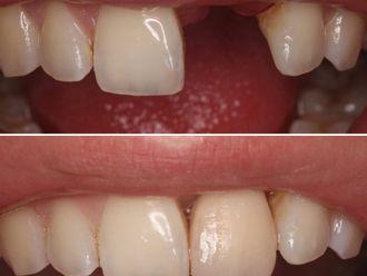 Implantes dentales-788632