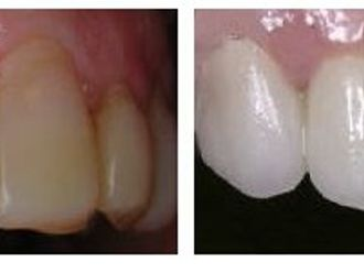 Blanqueamiento dental-275729