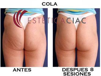 Radiofrecuencia - 634039