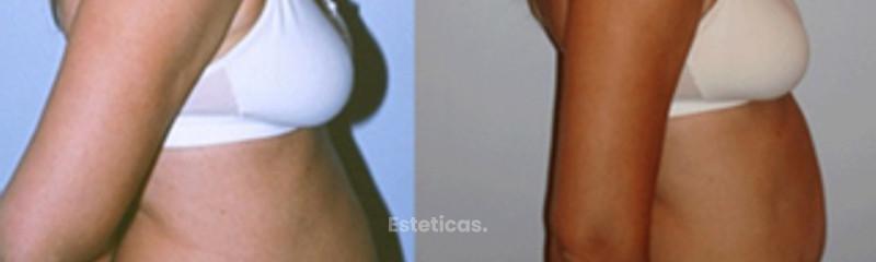 Abdominoplastía