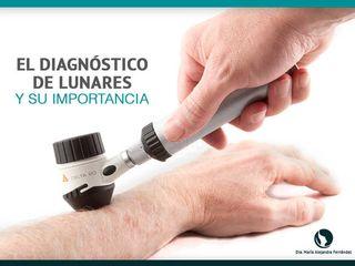 Diagnóstico de Lunares