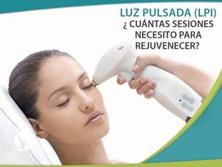 Luz Pulsada - Rejuvenecimiento Facial
