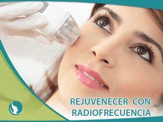 Rejuvenecimiento con Radiofrecuencia