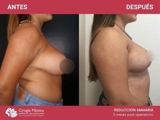 Reducción mamaria - Dr. Chiapero