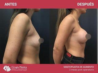 Mamoplastia de aumento - Dr. Emmanuel Manavela Chiapero