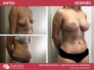 Abdominoplastia + Mamoplastia de aumento - Dr. Chiapero