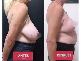 Reducción de mamas-689974