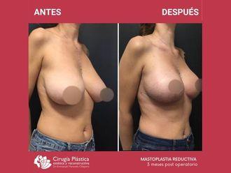 Reducción de mamas-713773