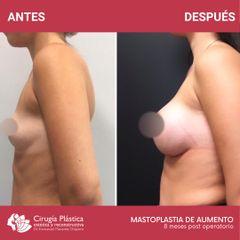 Aumento mamas - Dr. Emmanuel Manavela Chiapero