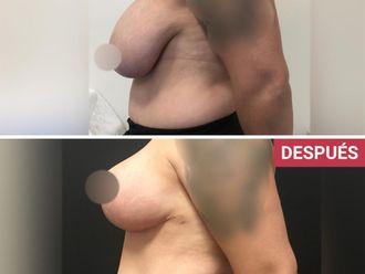 Reducción de mamas-739115