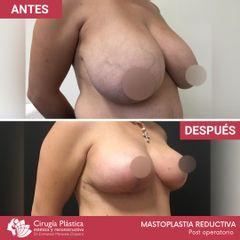Reducción de mamas - Dr. Emmanuel Manavela Chiapero