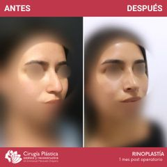 Rinoplastia - Dr. Emmanuel Manavela Chiapero
