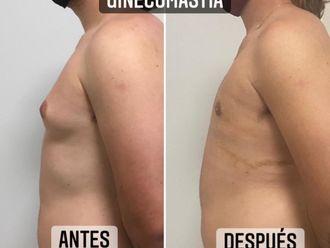 Ginecomastia - 788196