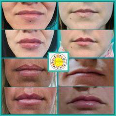 Relleno de labios - Dr. Javier Nicolía
