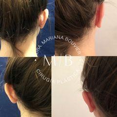 Otoplastia - Dra. Mariana Bouvier