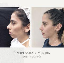 Rinoplastia + mentoplastia - Dra. Mariana Bouvier