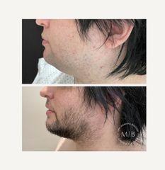 Bichectomia con lipoaspiracion de papa y mentoplastia - Dra. Mariana Bouvier