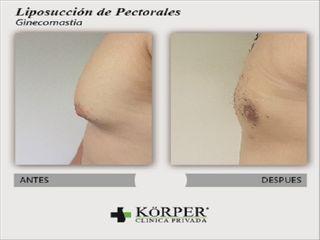 liposuccion de Pectorales