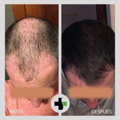 Implante Capilar - Antes y Después