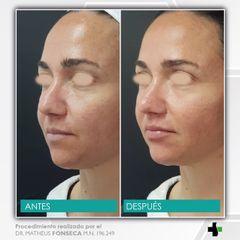 armonizacion facial - korper clinica privada 4.jpeg