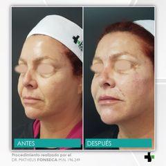 armonizacion facial - korper clinica privada 12.jpeg