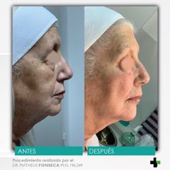 armonizacion facial - korper clinica privada 2.jpeg