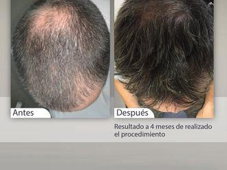 Implante capilar-647711