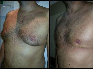 Cirugía de ginecomastia