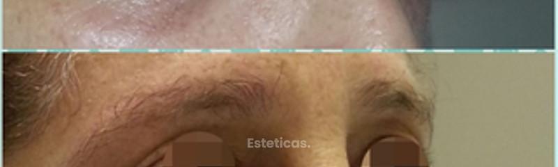 Cirugía de párpados Dra. Solimano