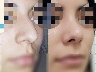 Cirugía de nariz Dra. Solimano