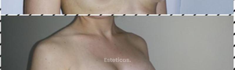 Aumento mamario Dra. Solimano
