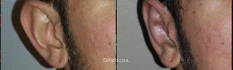 Auriculoplastía Dra. Solimano