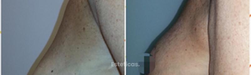 Levantamiento mamario Dra. Solimano