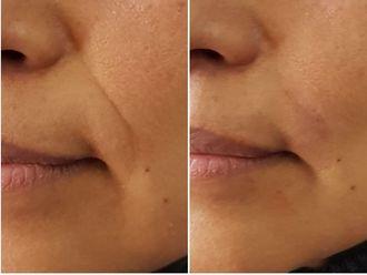 Rejuvenecimiento facial - 624164