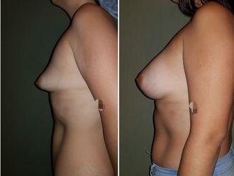 Aumento mamas - 635548