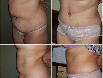 Abdominoplastía - 635552