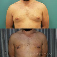 Cirugía de ginecomastia Dra. Solimano
