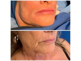 Botox-688171