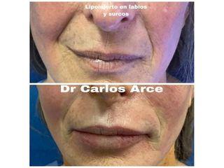 Relleno de labios - Dr. Carlos Arce