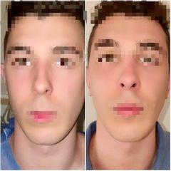Rinoplastia Antes y después