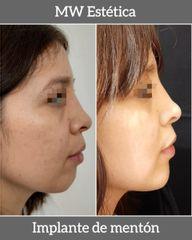 Implante de mentón - antes y después