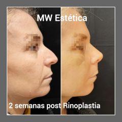Rinoplastia - Mw Estética