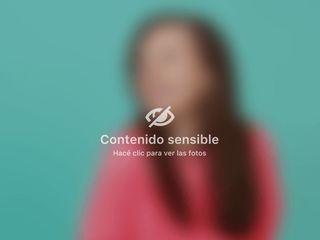 Minidermo - Mw Estética