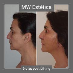 Lifting - Mw Estética