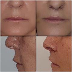 Lip lift (levantamiento labio superior) - Mw Estética
